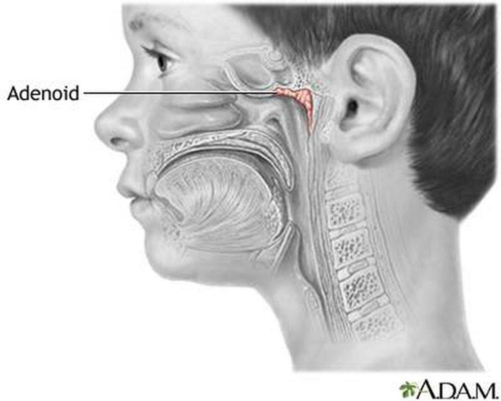 Вечная проблема - аденоиды и ребенок. Лечение аденоидов без операции и без боли.