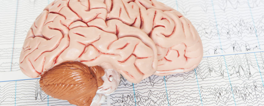Диагностика и лечение эпилепсии. Прием ведет федеральный эксперт
